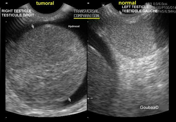 ultrasonography testicle tumor seminoma cancer du testicule séminome ...